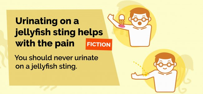 Urinating on a jellyfish sting will not help with the pain.